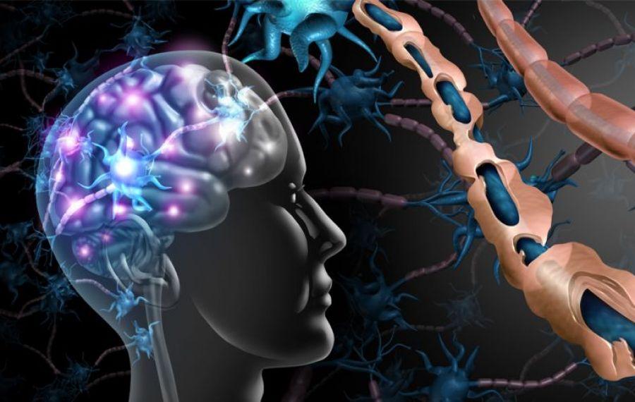 TRATAMENT revoluționar pentru scleroza multiplă