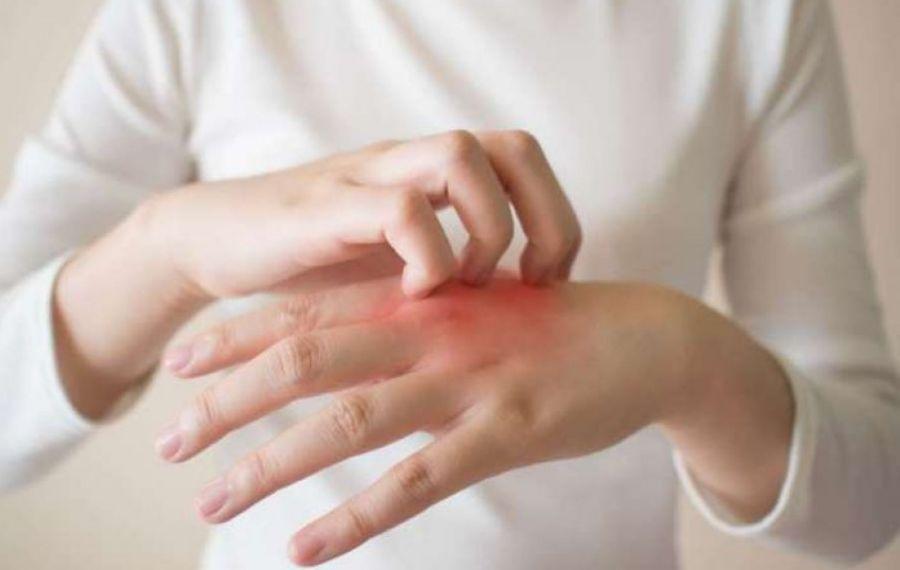 Cauzele și cele mai bune remedii pentru IRITAȚIA mâinilor