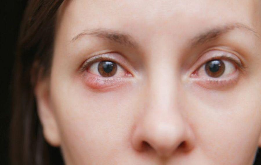 Ulciorul: Care sunt cauzele de apariție și metode de tratament medicamentos și naturist